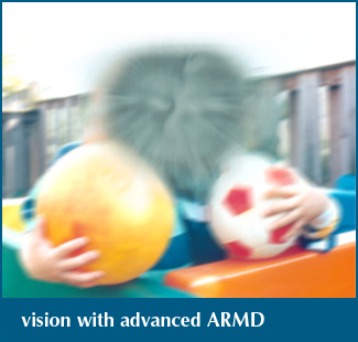 Vision with age-related macular degeneration
